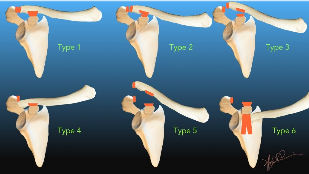 Rockwood classification of AC Joint Separation