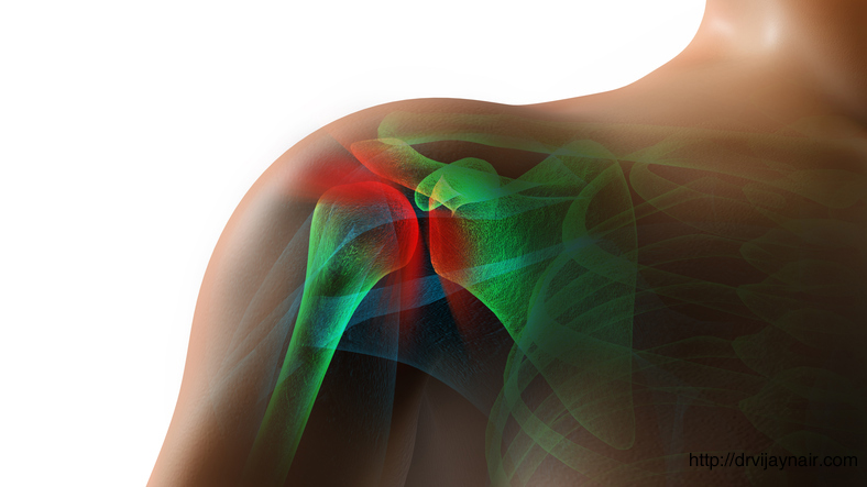 Calcific Shoulder Tendonitis