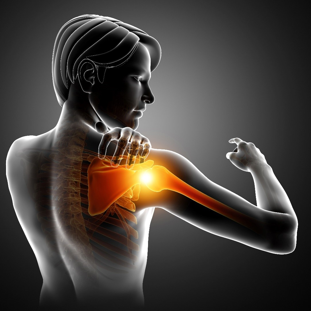 Acromioclavicular Ac Joint Separation Shoulder Pain Bangalore