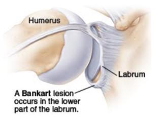 bankart lesion