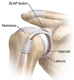 Front view of shoulder joint showing SLAP lesion