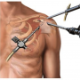 Common types of Shoulder Surgery