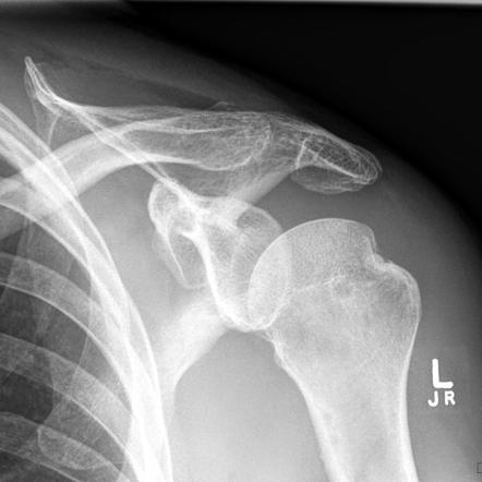 Hill Sachs Lesion