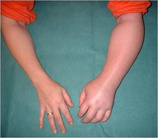 Shoulder-Hand Syndrome