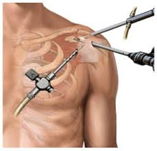 Types of Shoulder Surgery