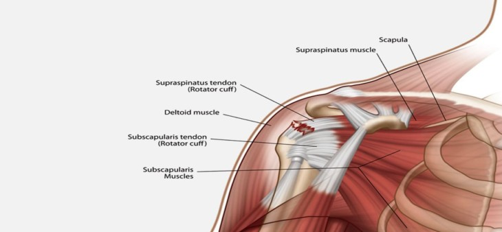 Can Rotator Cuff Injuries heal by itself?