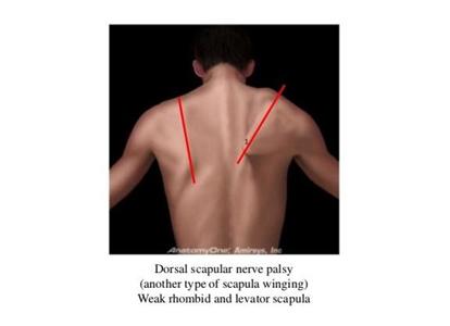 Dorsal Scapular Nerve Palsy
