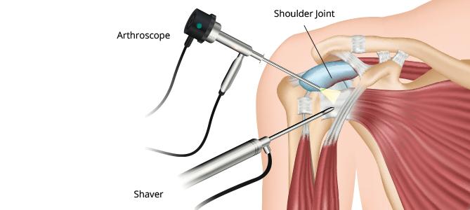 Same Day Shoulder Surgeries