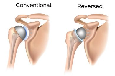 Anterosuperior approach for Reverse Shoulder Arthroplasty