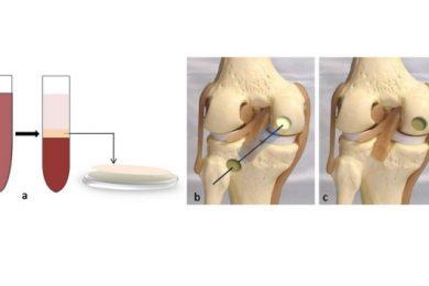 Bone Marrow Aspirate Technique of Cartilage Repair
